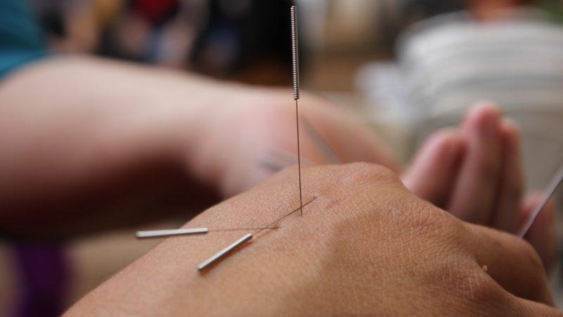 Comment retrouver une silhouette de rêve grâce à l'acupuncture ?